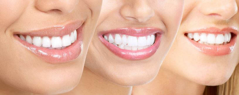 Get teeth whitening and cleanings at First Impressions Dentistry.