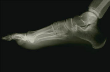 X-ray of a foot.