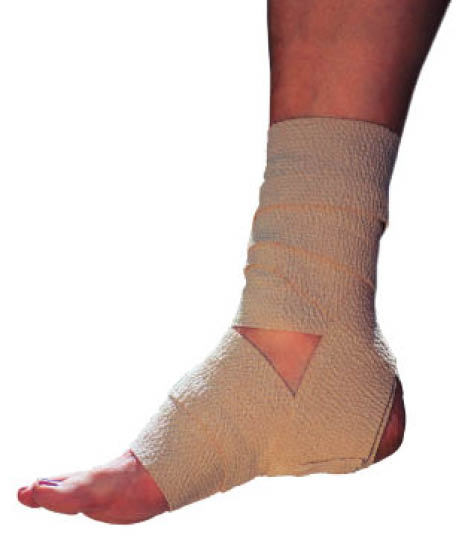 Photo of ankle wrapped in Ace bandage. Dr. Perez treats sports injuries.
