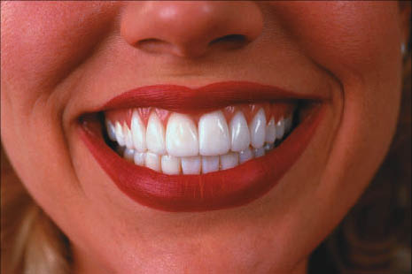 A more beautiful smile awaits with professional teeth whitening