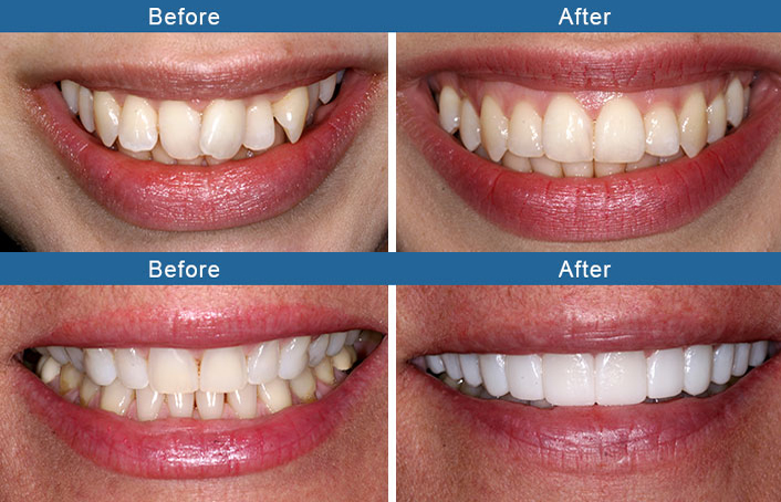 Bellingham Smiles in 98225 to restore your smile before and after photo
