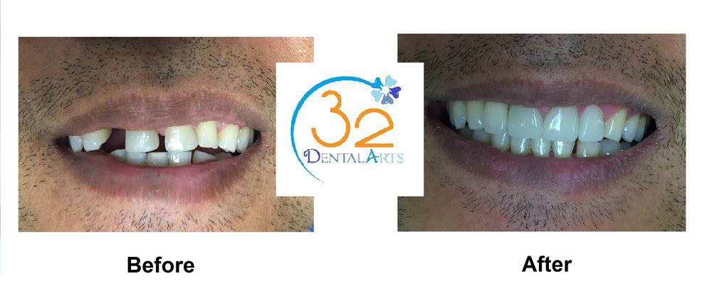 See the difference of a porcelain veneer smile makeover San Diego 32 Dental Arts
