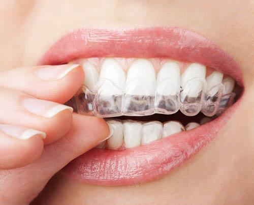 Braces, straight teeth