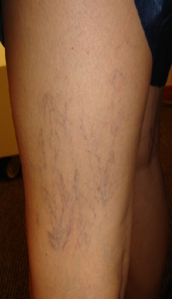 Don't let spider veins embarrass you.