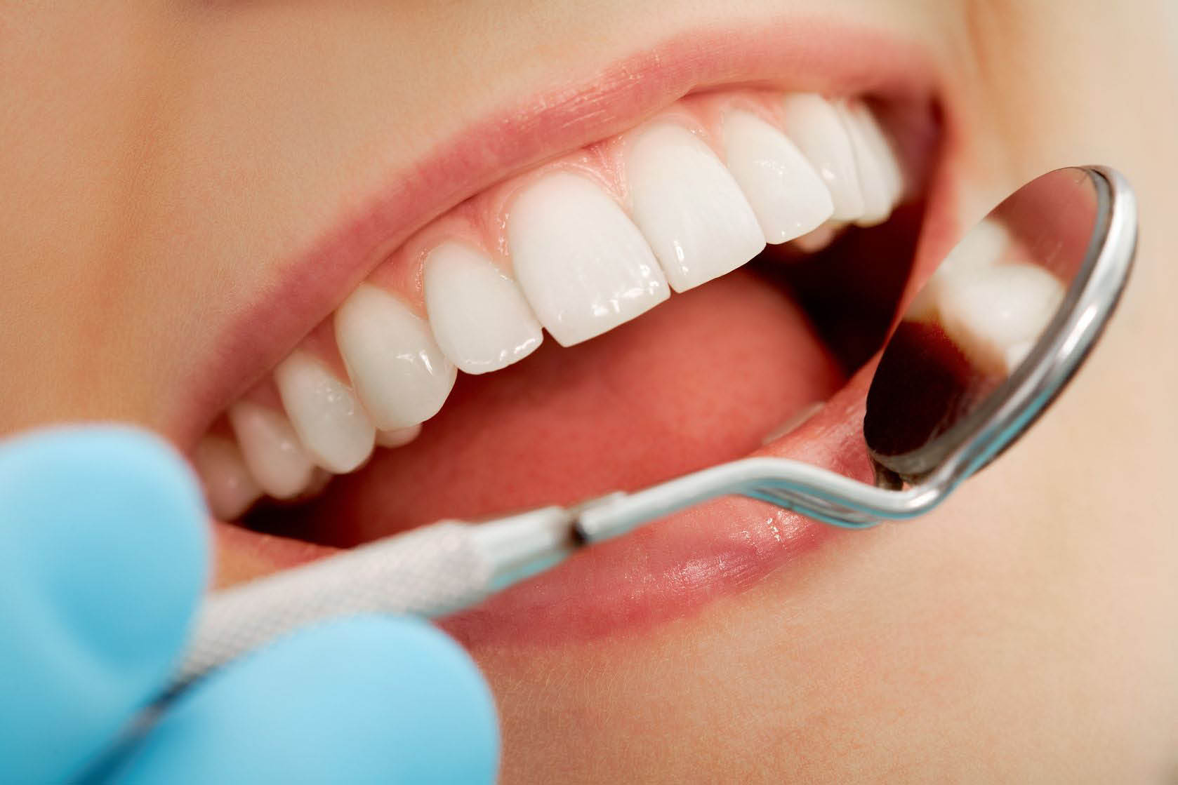 waverly lebard, family dentistry, teeth, root canal, fillings, cleaning, braces, dentist, partials, implants, dentures