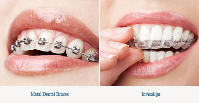 tooth colored fillings, invisalign, cosmetic dentistry, Restorative dentistry in Phoenix, AZ 85044