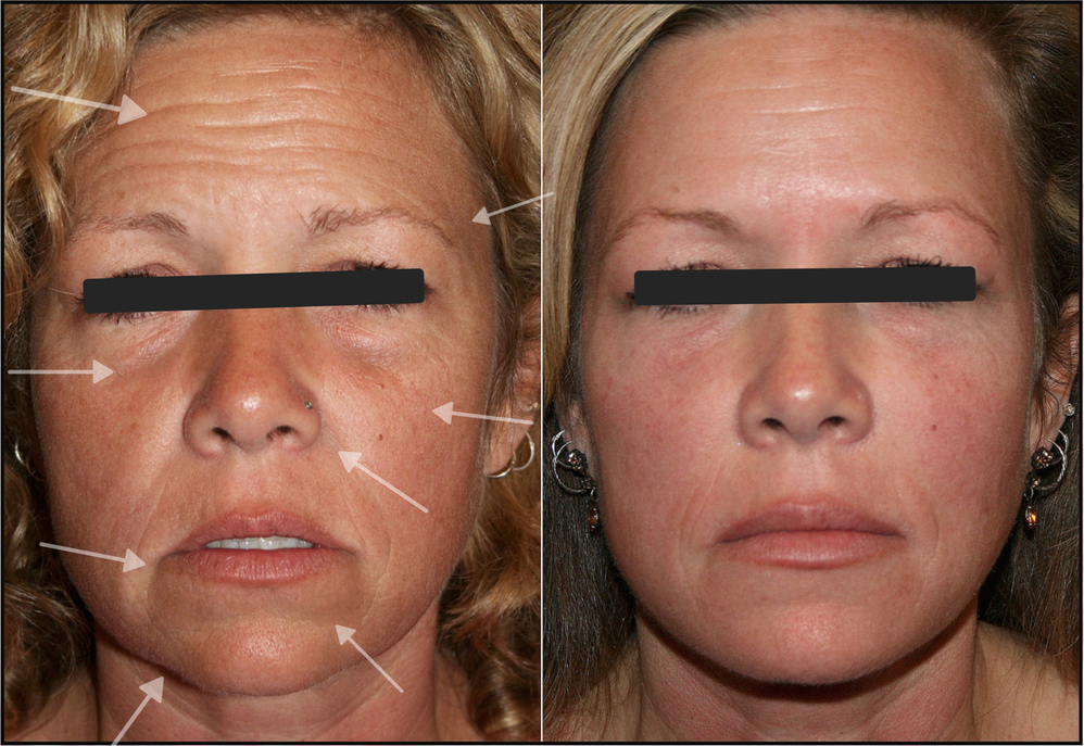 facelift no plastic surgery no wrinkles get rid of wrinkles remove bags lip filler fuller lips no crows feet remove eye wrinkles