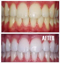 Teeth whitening near San Antonio Heights