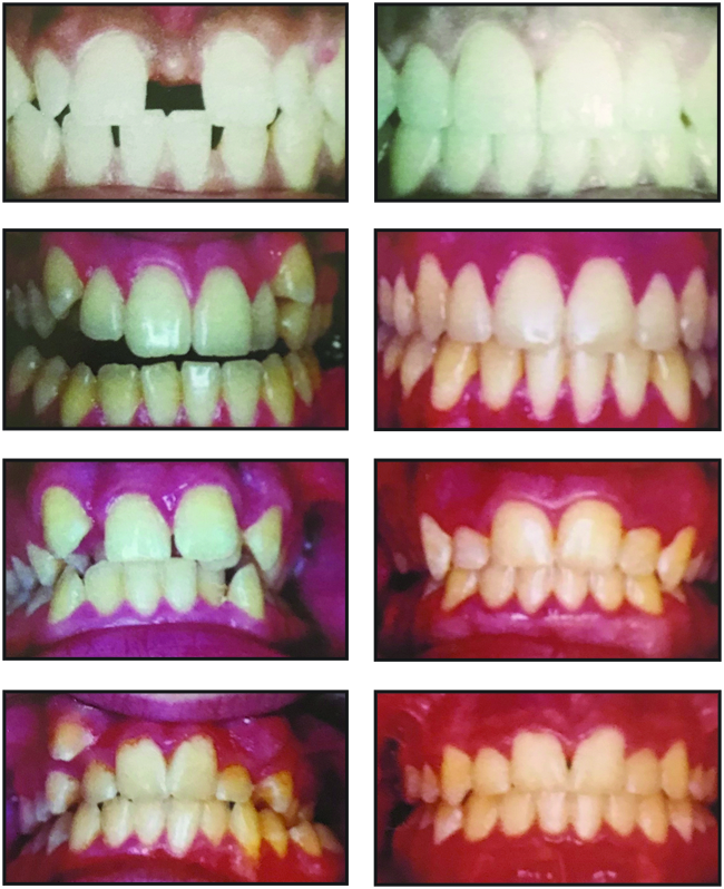braces, before and after, invisilign, teen, adult, teeth