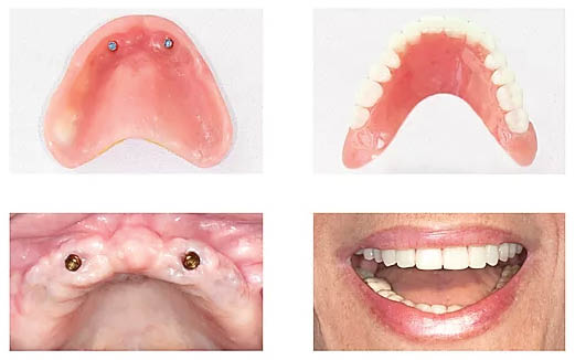 Quality dentures - quality implants - Love My Smile Center in Auburn, Washington - Love My Smile Center in Marysville, Washington - smile with confidence - denture coupons near me - denture offices near me