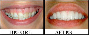 Before and after smile photos