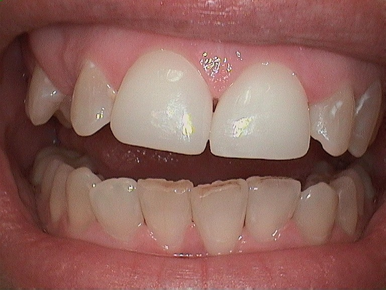 Whiter teeth for a bright smile