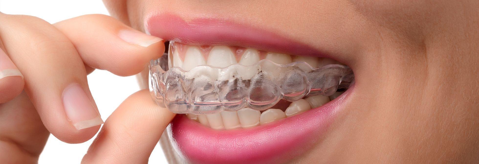 Liu Orthodontics in Federal Way, WA banner image
