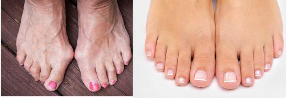 photos of feet with and without bunions corrected by Dr. David H. Berlin