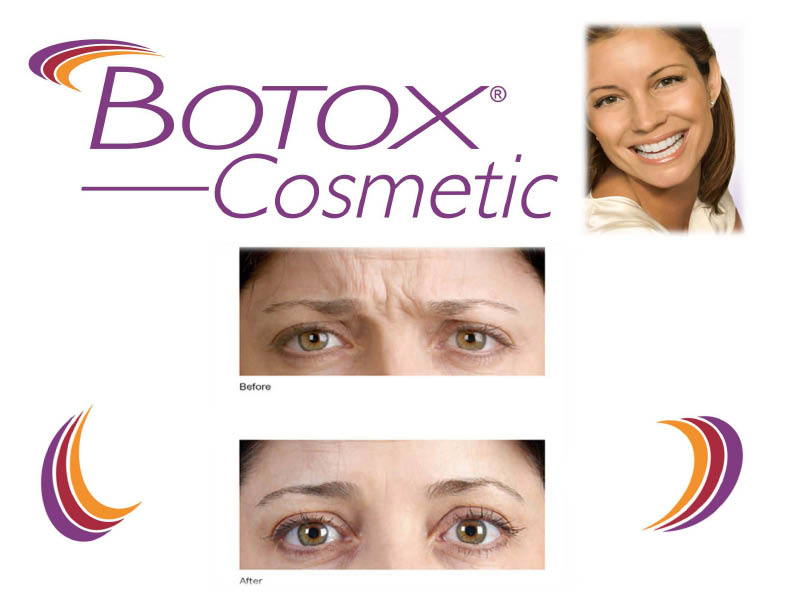 botox laser hair removal coupons juvederm coupon Indian wells, CA