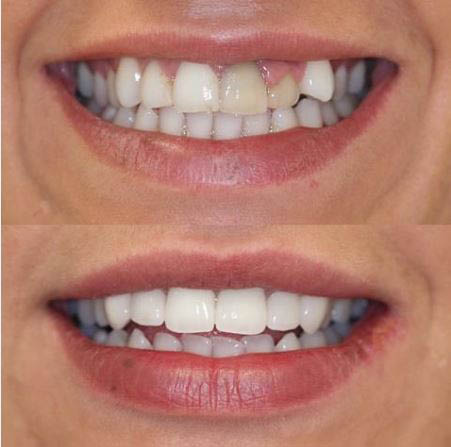 Before and After Orthodontic Dentistry in Reseda, CA