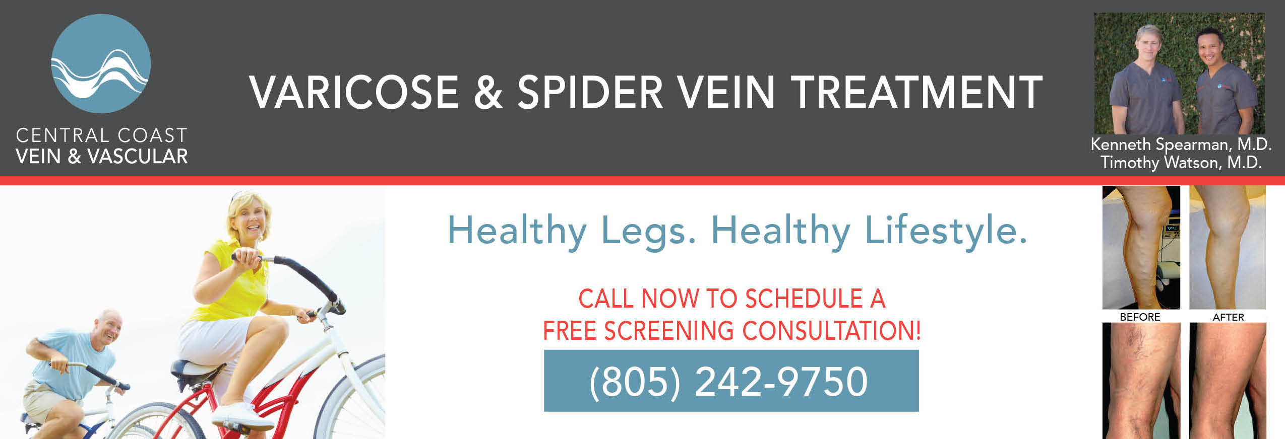 Central Coast Vein & Vascular in Arroyo Grande, CA banner ad with before and after pictures