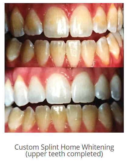 Cosmetic, Aesthetic restoration, bonding, veneers, whitening, tooth-colored fillings, inlays, onlays, crowns, root canal, bridge, periodontal therapy, surgical, treatments, dentist, bite guard