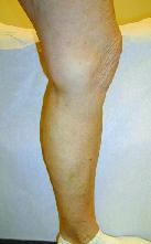 Varicose veins, after