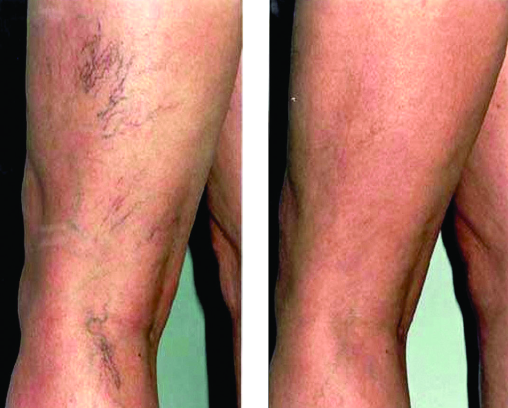 Spider veins before and after; vein doctor Arroyo Grande