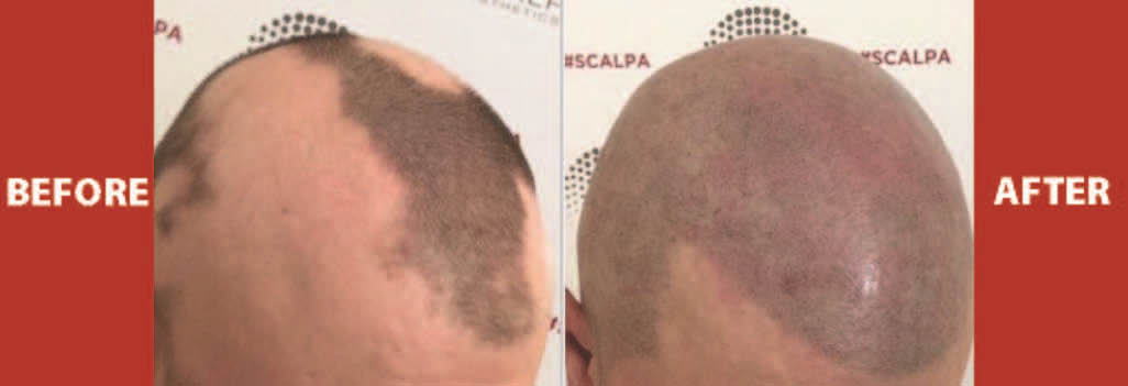 Before and after photo of scalp micropigmentation performed at Chisel.