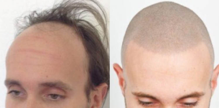Man with scalp pigmentation hair loss solution.