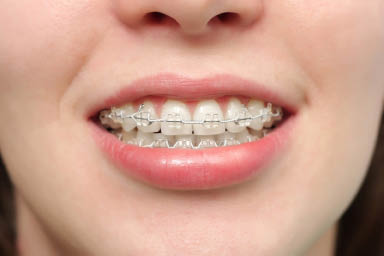 girl with clear braces on her teeth; Gorczyca Orthodontist Antioch, CA; Invisalign Braces for teens and adults