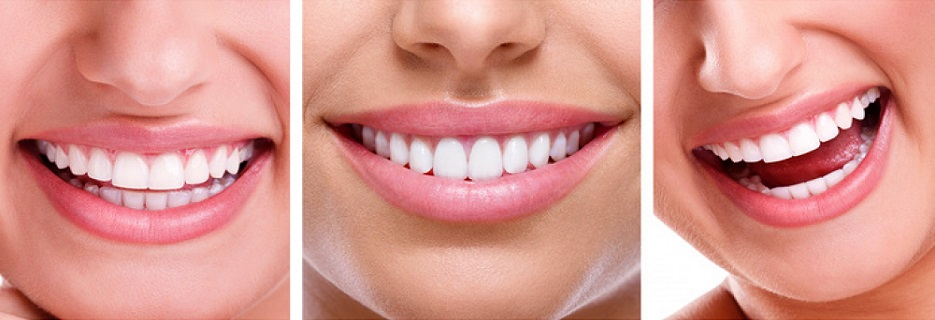 Dentist near me, Teeth Extractions, Teeth Whitening, affordable Dental Care