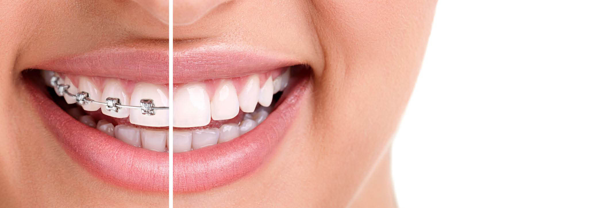 Dental invisible braces, best braces for adults, cost of clear braces, clear braces price,