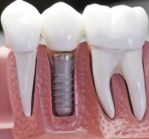 Dental Implants Fletcher, Mills River, and Hendersonville NC.