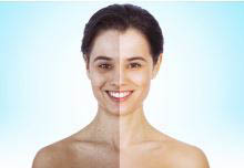photo of woman with hyperpigmentation from Derma Smooth Boutique in Commerce, MI