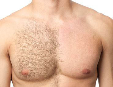 photo of man with hair removed from half his chest at Derma Smooth Boutique in Commerce, MI