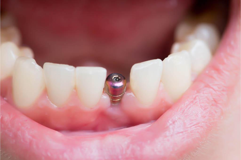 Des Moines Dental Center in Des Moines, WA - dental implants - dental surgery - Des Moines dentists near me - Des Moines dental office near me - dentists in Des Moines, WA - Des Moines dentists