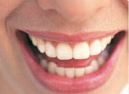 Teeth whitening and cosmetic dentistry services