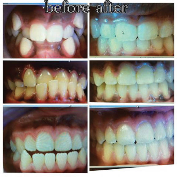 Before and after dental images from Elite Dental Care.