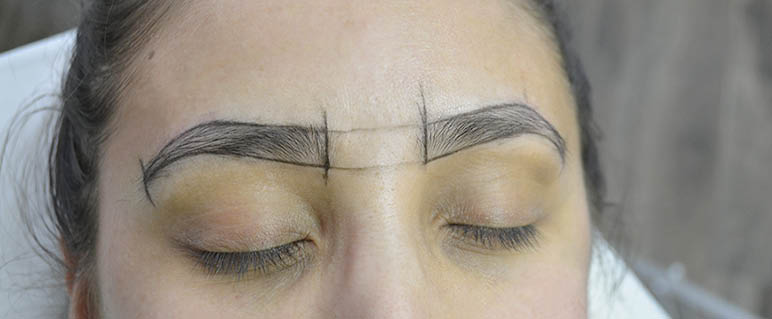 Woman's eyebrows marked up and ready for treatment
