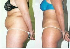 Elite Body Contours NW - Lake Stevens, WA - ultrasound cavitation therapy - non-surgical fat loss and skin tightening - body contouring