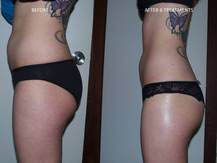 Lose fat and tighten skin with our advanced ultrasound procedures at Elite Body Contours NW in Lake Stevens, Washington - body contouring