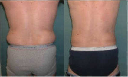 Before and after pictures of non-surgical ultrasound cavitation therapy for men and women from Elite Body Contours NW in Lake Stevens, WA - body contouring