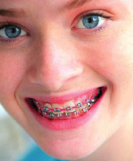 photo of child with braces from Essayan Orthdontics in West Bloomfield, MI