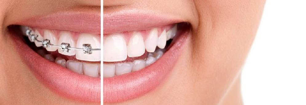 photo of mouth with half braces from Essayan Orthdontics in West Bloomfield, I