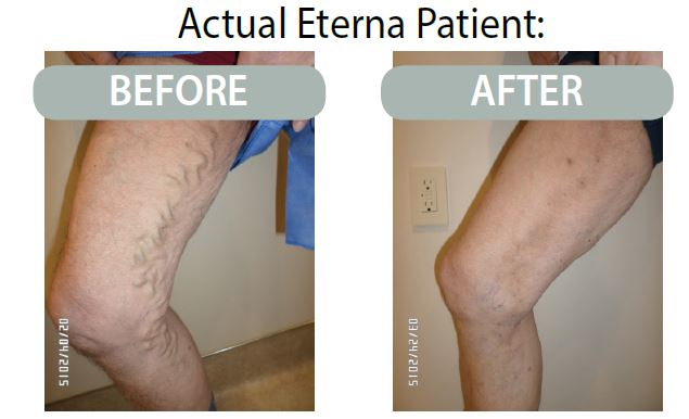 Photos of legs before and after vein treatment from Eterna Vein & Medical Aesthetics in Puyallup, Washington