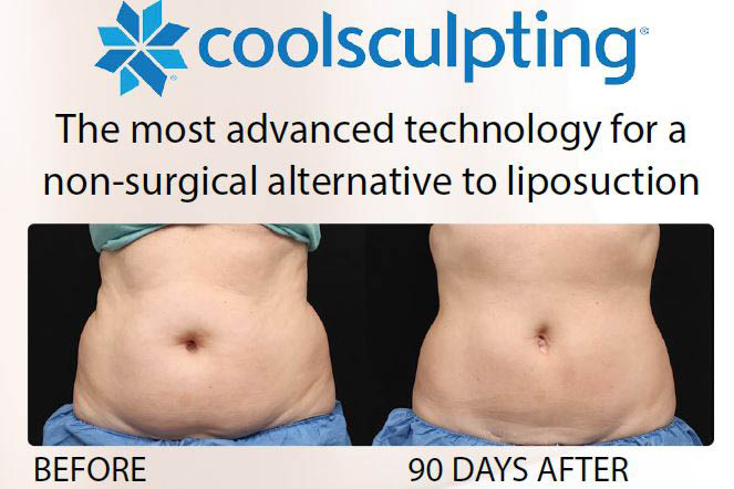 Photos of a waist before and after Coolsculpting body contouring treatment from Eterna Vein & Medical Aesthetics in Puyallup, WA