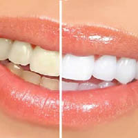 Ashton Dental in Aurora, IL provides affordable dental care for the whole family.