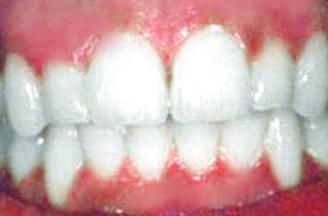 blue ash dental group after teeth image blue ash ohio