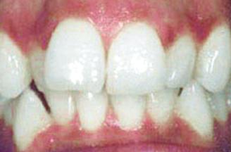 blue ash dental group before teeth image blue ash ohio