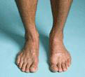 photo of healthy feet from Dr. David H. Berlin of Long Lake Podiatry in Troy and St. Clair Shores, MI