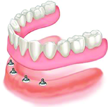 mini dental implants five star dentures & dentistry blue springs, mo