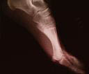 photo of x-ray foot from Dr. David H. Berlin of Long Lake Podiatry in Troy and St. Clair Shores, MI