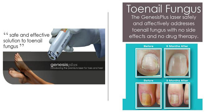 The GenesisPlus laser safely and effectively addresses toenail fungus with no side effects and no drug therapy - premium laser for toes and heel - Edmonds foot care near me - Sound Foot and Ankle Podiatry in Edmonds, Washington